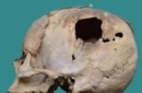 Un cranio trapanato del 1700